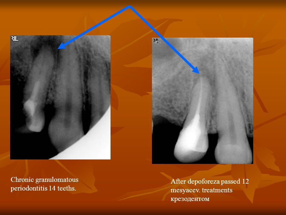 Chronic granulomatous periodontitis 14 teeths. After depoforeza passed 12 mesyacev.