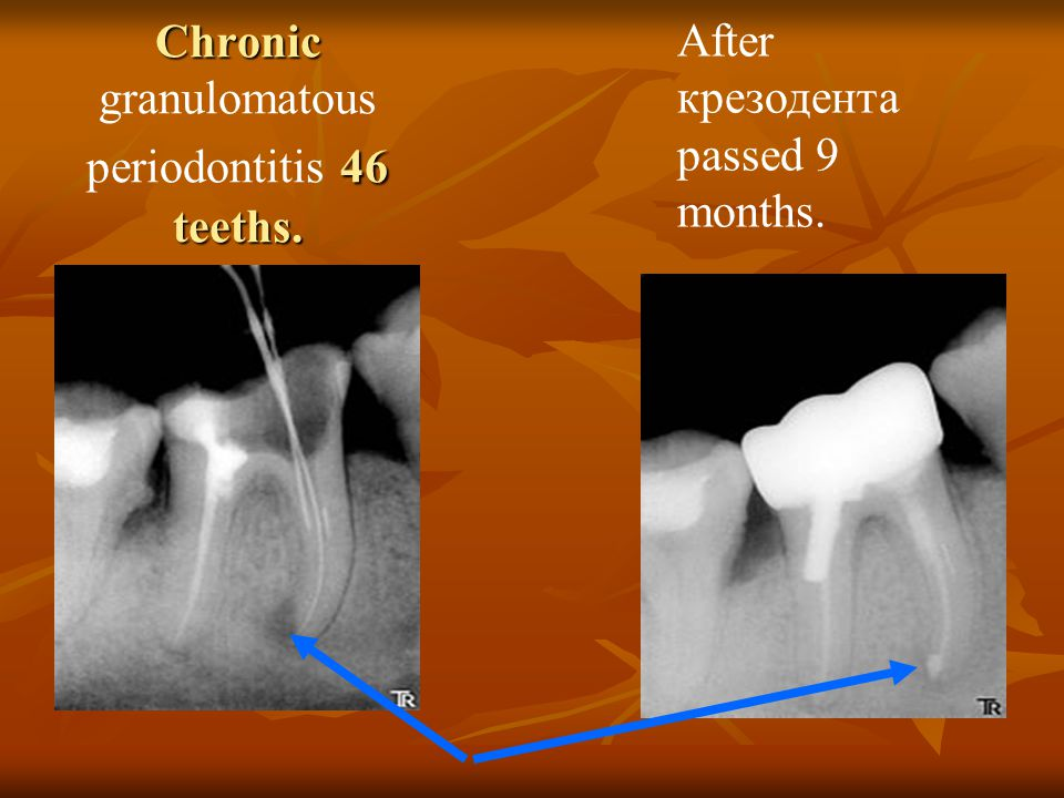 Chronic 46 teeths. Chronic granulomatous periodontitis 46 teeths. After крезодента passed 9 months.
