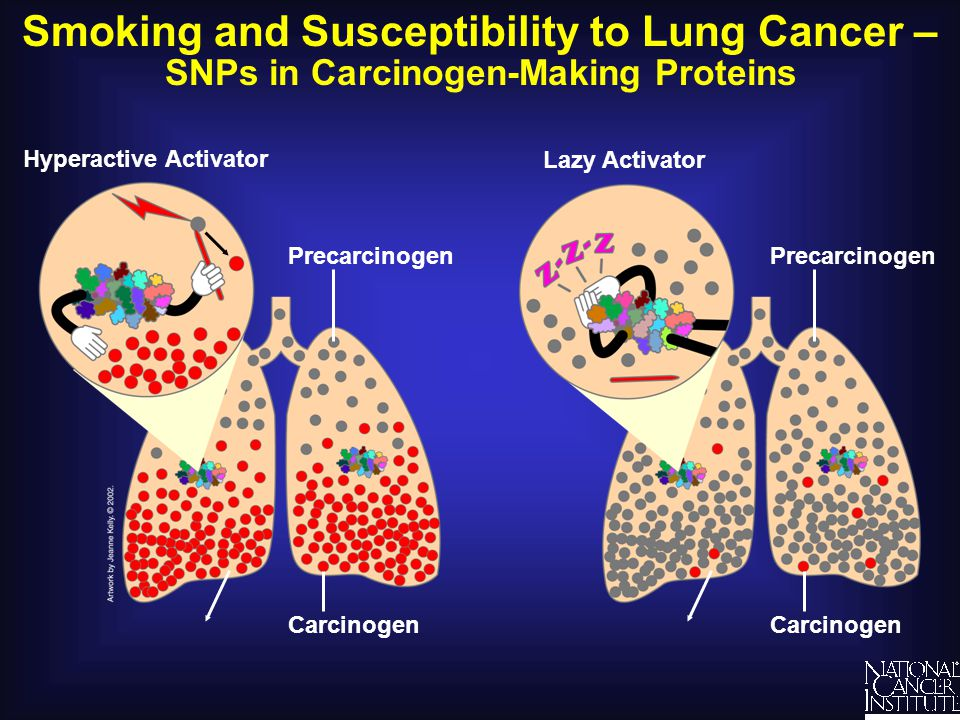 Smoking and Susceptibility to Lung Cancer – SNPs in Carcinogen-Making Proteins Hyperactive Activator Lazy Activator Carcinogen Precarcinogen Carcinoge