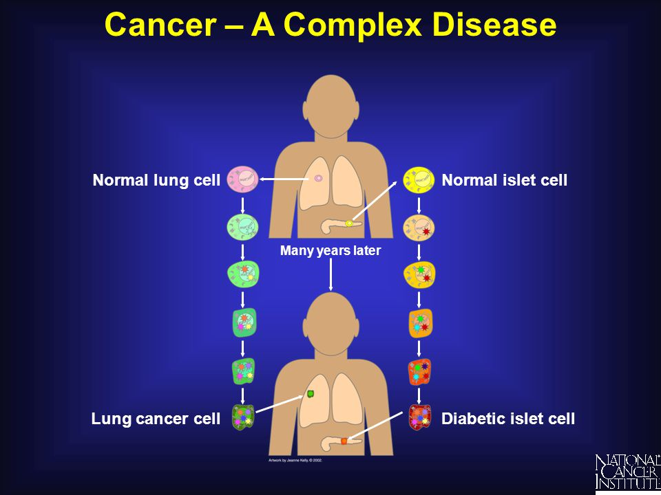Cancer – A Complex Disease Diabetic islet cell Normal islet cellNormal lung cell Lung cancer cell Many years later