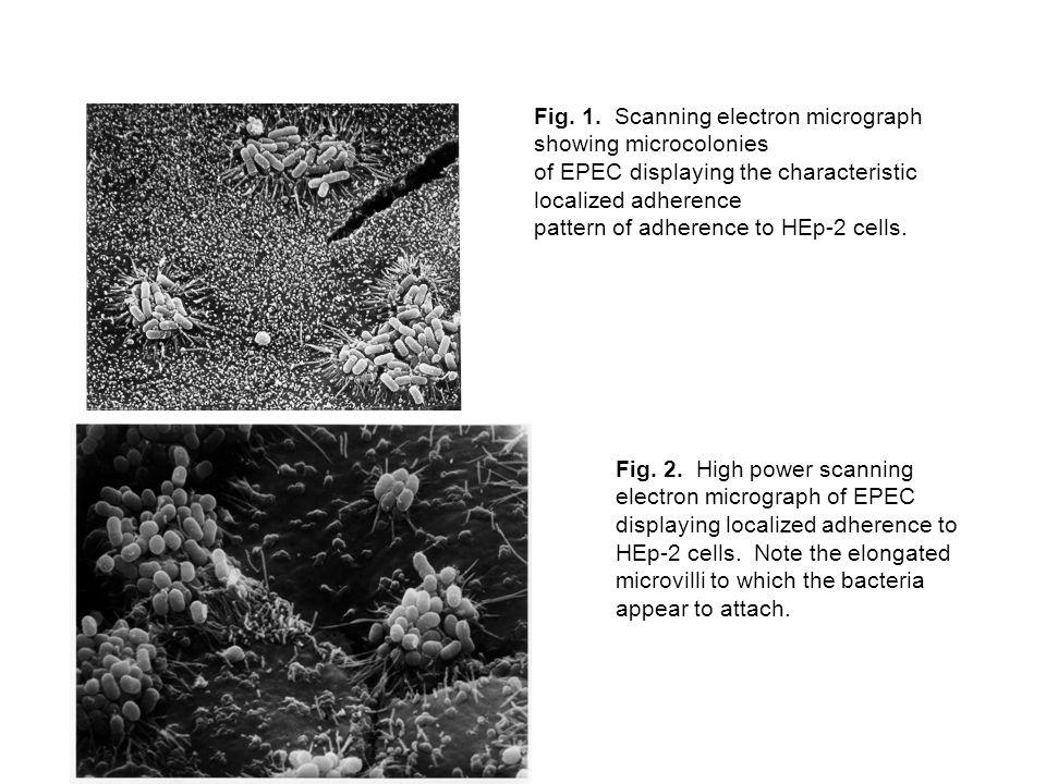 This screenshot shows the complete genome of Yersinia pestis (top) versus Escherichia coli versus Salmonella typhi versus Salmonella typhimurium (bottom).