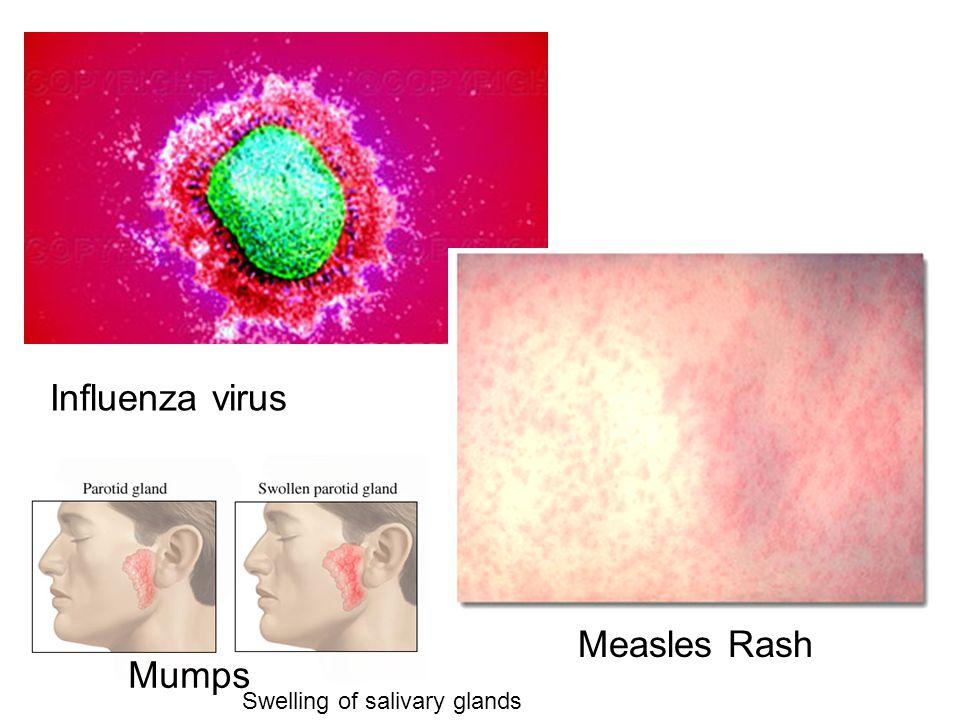 Influenza virus Measles Rash Mumps Swelling of salivary glands