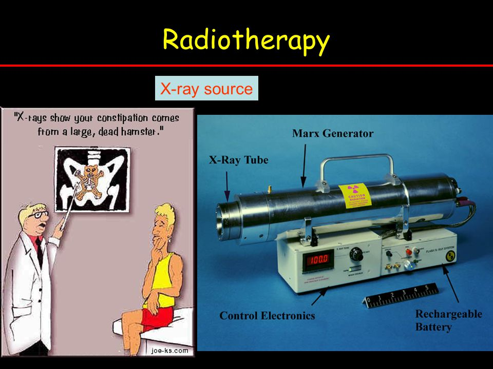 Radiotherapy X-ray source