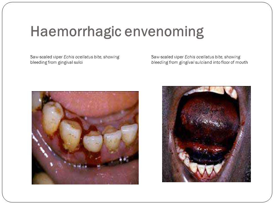 Haemorrhagic envenoming Saw-scaled viper Echis ocellatus bite, showing bleeding from gingival sulci Saw-scaled viper Echis ocellatus bite, showing ble