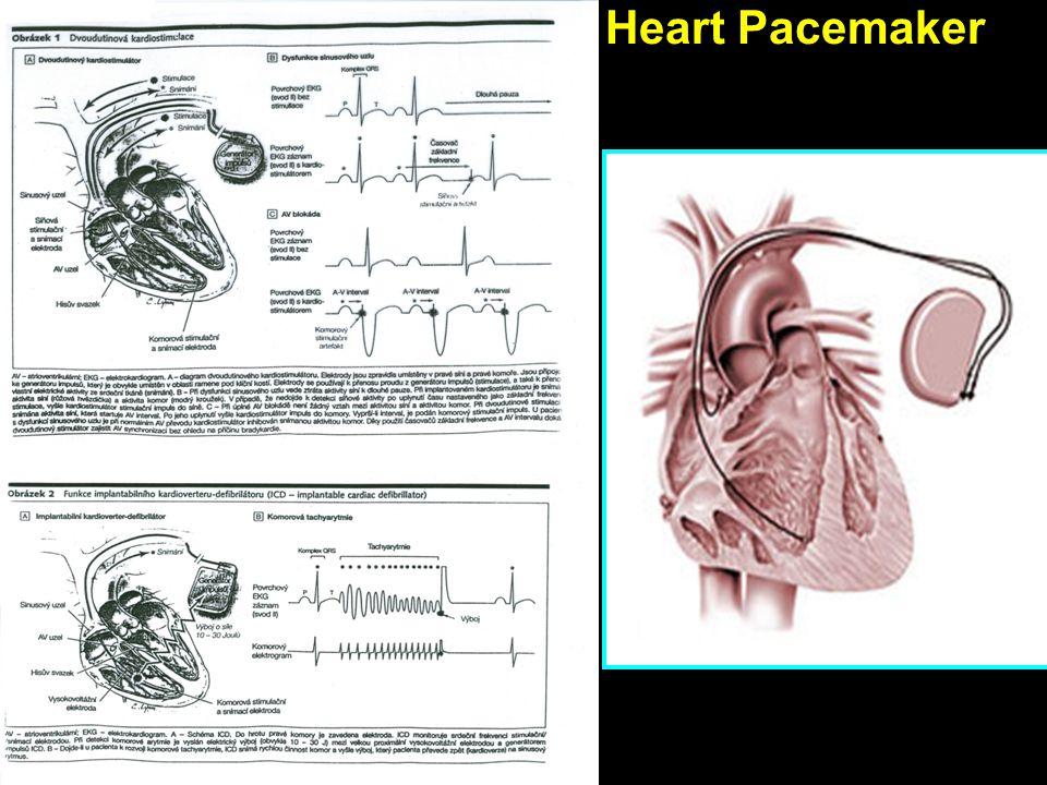Heart Pacemaker