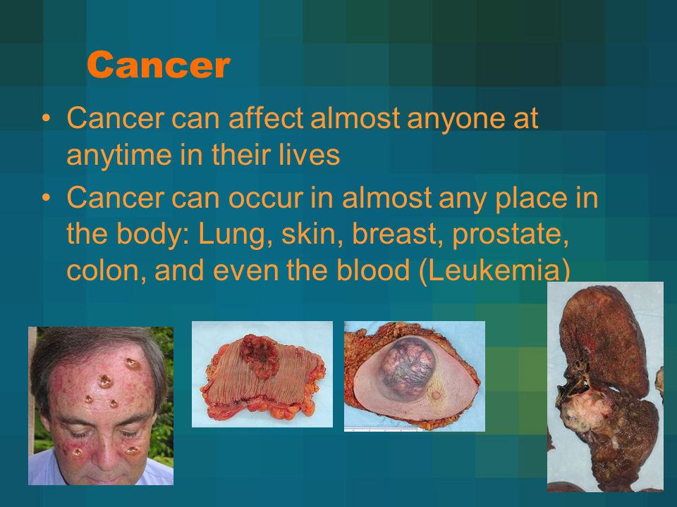 Cancer Cancer can affect almost anyone at anytime in their lives Cancer can occur in almost any place in the body: Lung, skin, breast, prostate, colon, and even the blood (Leukemia)
