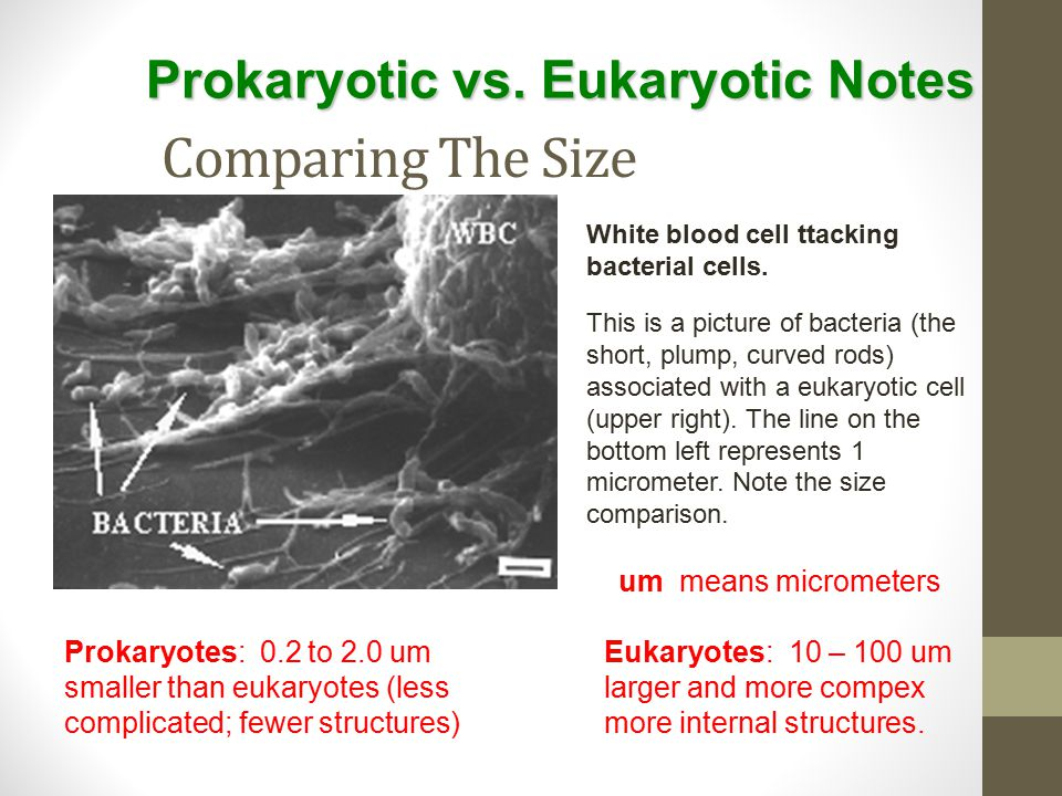 Comparing The Size This is a picture of bacteria (the short, plump, curved rods) associated with a eukaryotic cell (upper right). The line on the bott
