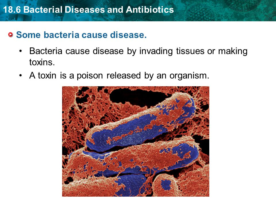 18.6 Bacterial Diseases and Antibiotics Some bacteria cause disease.