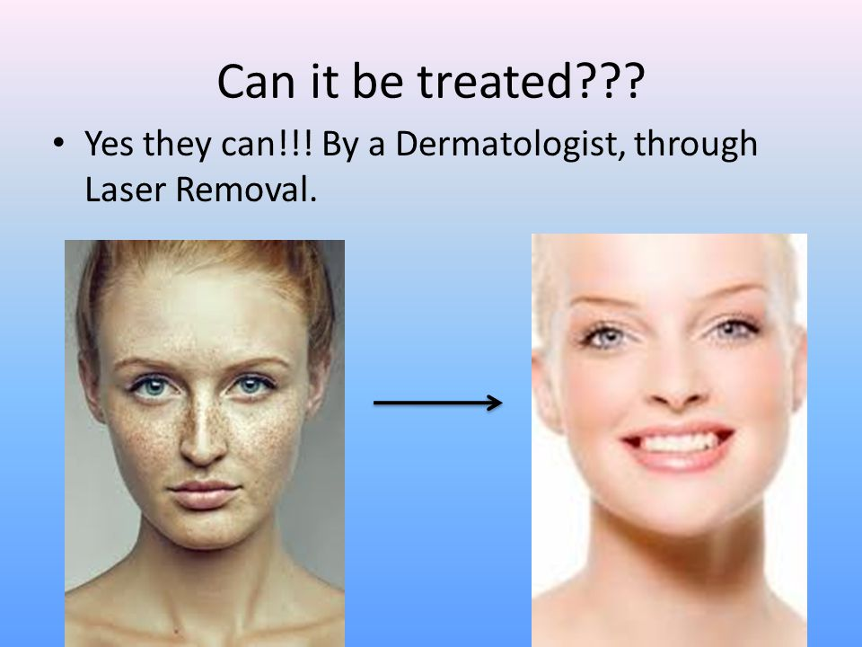 Can it be treated??? Yes they can!!! By a Dermatologist, through Laser Removal.