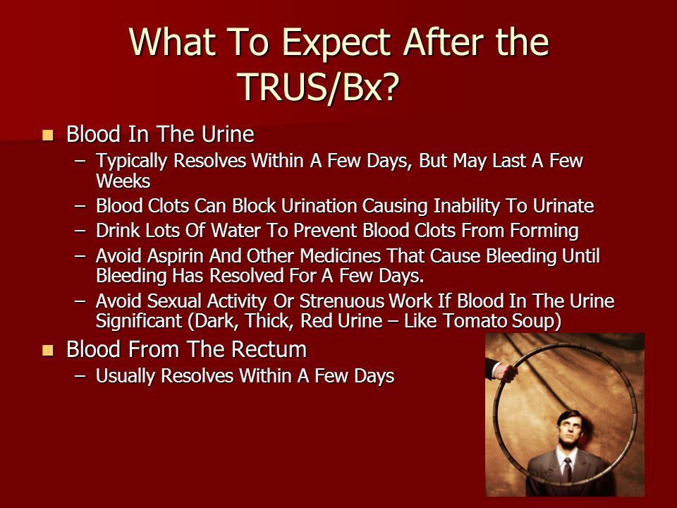 What To Expect After the TRUS/Bx? Blood In The Urine Blood In The Urine –Typically Resolves Within A Few Days, But May Last A Few Weeks –Blood Clots C
