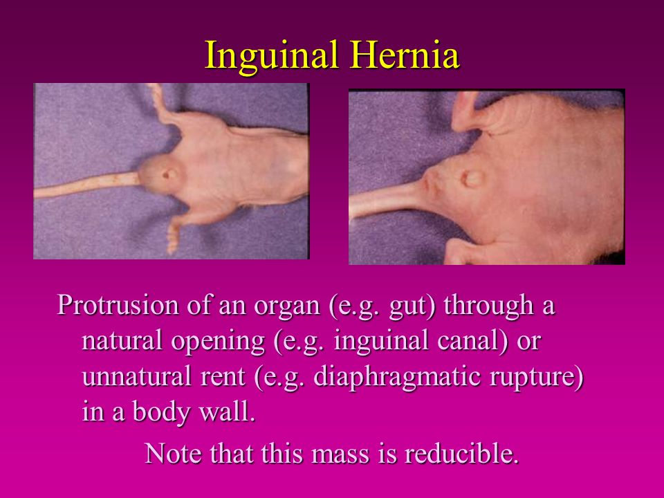 Inguinal Hernia Protrusion of an organ (e.g. gut) through a natural opening (e.g. inguinal canal) or unnatural rent (e.g. diaphragmatic rupture) in a