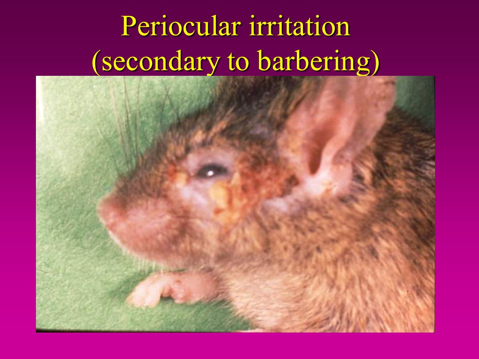 Periocular irritation (secondary to barbering)