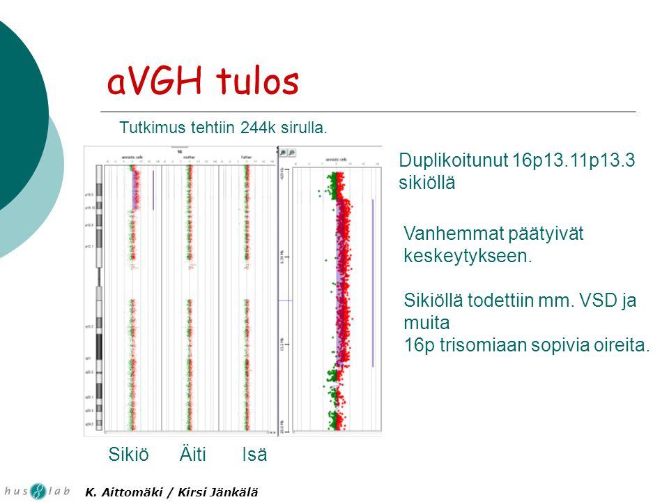 aVGH tulos Tutkimus tehtiin 244k sirulla. Sikiö ÄitiIsä Duplikoitunut 16p13.11p13.3 sikiöllä Vanhemmat päätyivät keskeytykseen. Sikiöllä todettiin mm.