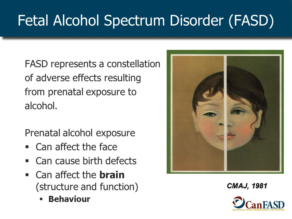 FASD represents a constellation of adverse effects resulting from prenatal exposure to alcohol.