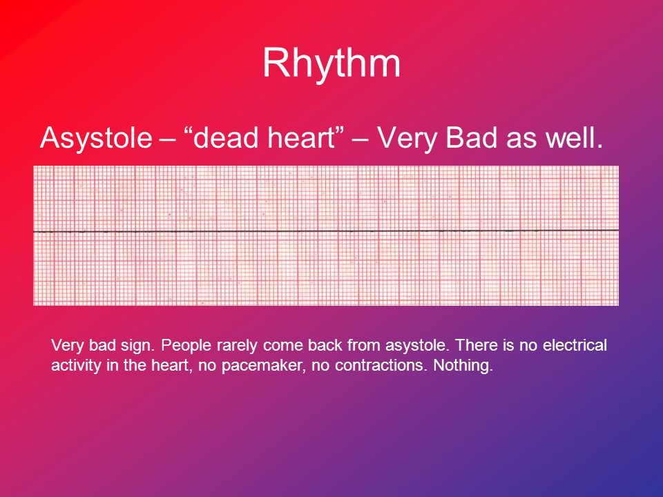 "Rhythm Asystole – ""dead heart"" – Very Bad as well. Very bad sign. People rarely come back from asystole. There is no electrical activity in the heart,"
