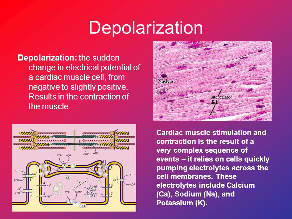 Depolarization Depolarization: the sudden change in electrical potential of a cardiac muscle cell, from negative to slightly positive.