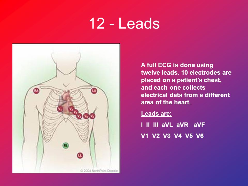 12 - Leads A full ECG is done using twelve leads.