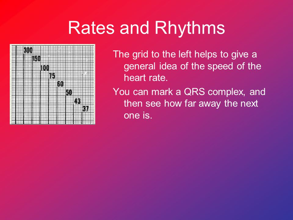 Rates and Rhythms The grid to the left helps to give a general idea of the speed of the heart rate.