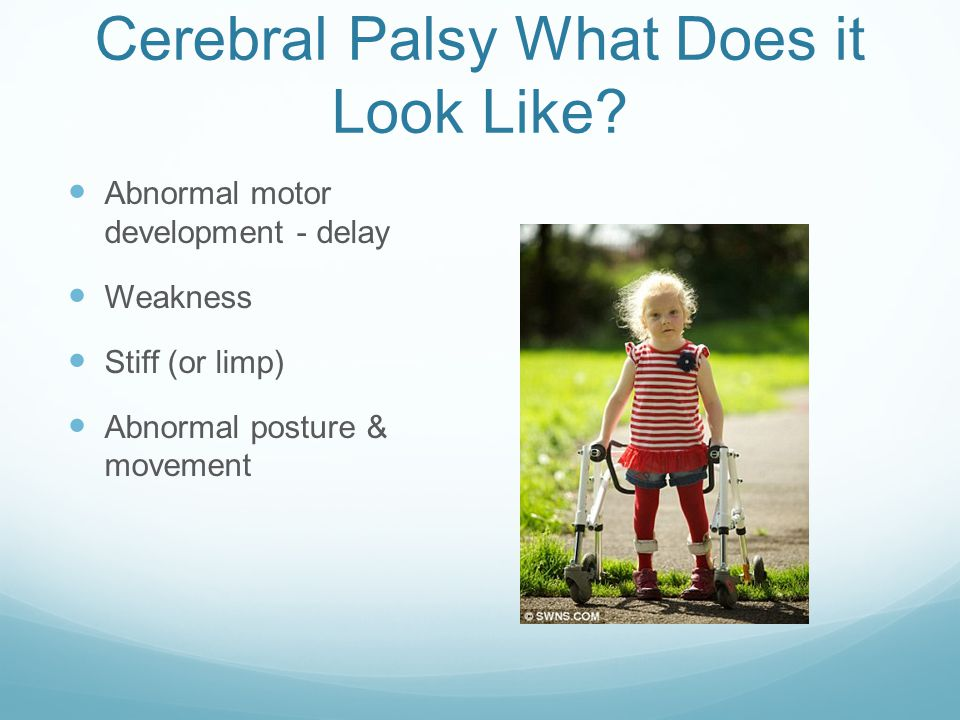 Cerebral Palsy What Does it Look Like.