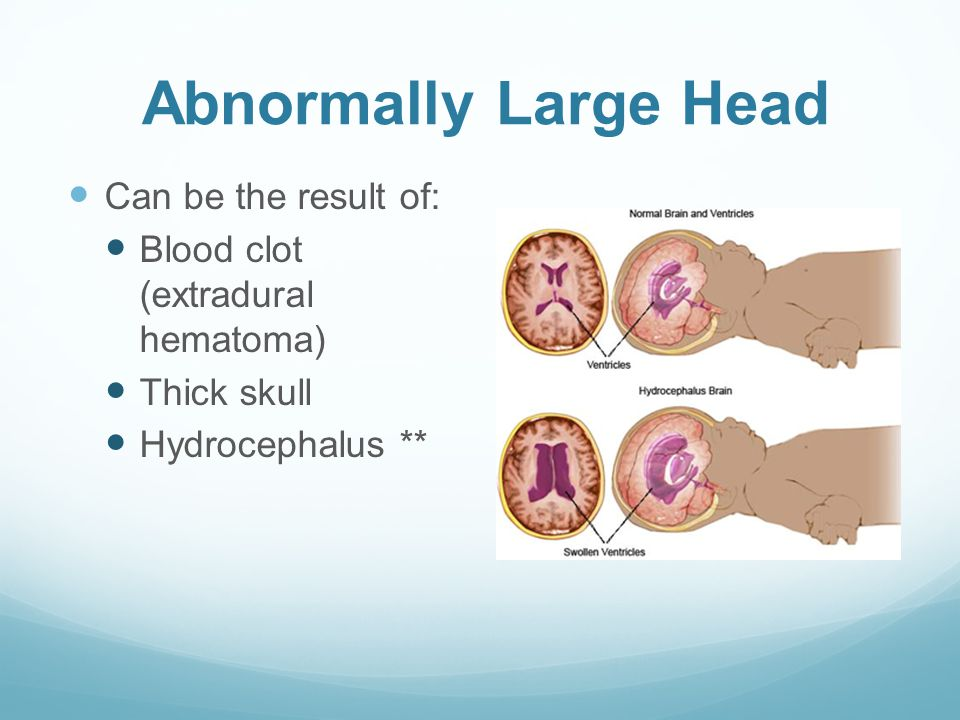 Abnormally Large Head Can be the result of: Blood clot (extradural hematoma) Thick skull Hydrocephalus **
