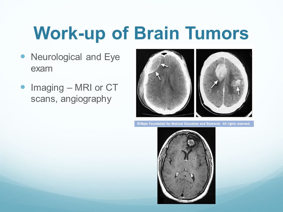 Work-up of Brain Tumors Neurological and Eye exam Imaging – MRI or CT scans, angiography