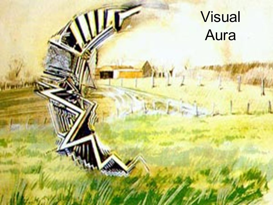 02/05/201521 Visual Aura