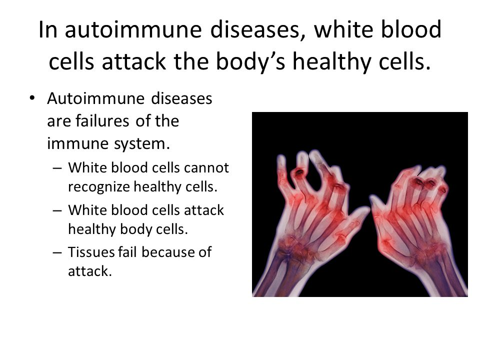 In autoimmune diseases, white blood cells attack the body's healthy cells. Autoimmune diseases are failures of the immune system. – White blood cells