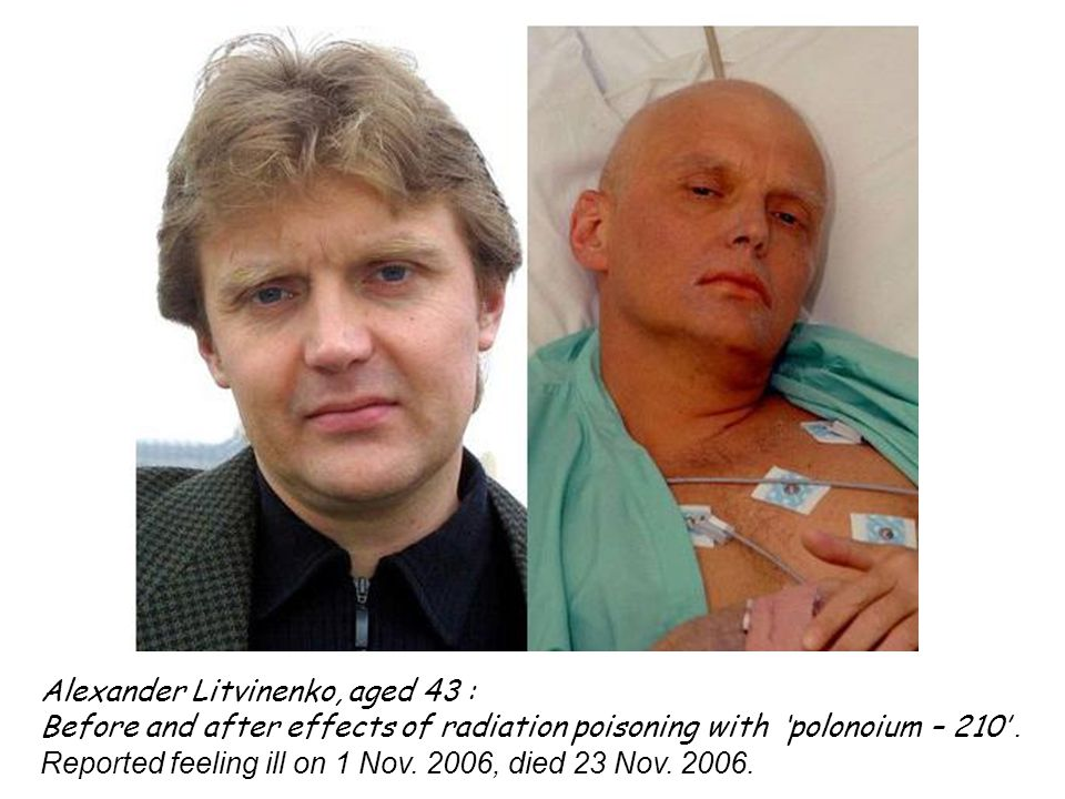 Alexander Litvinenko, aged 43 : Before and after effects of radiation poisoning with 'polonoium – 210'.