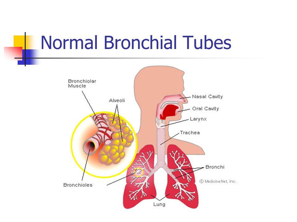 Normal Bronchial Tubes