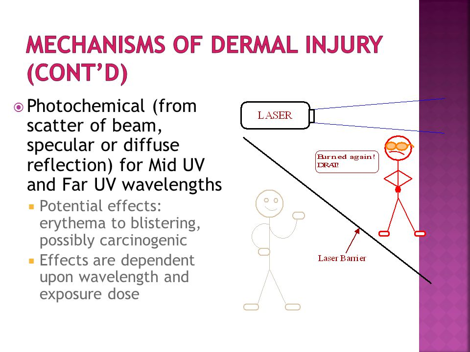  Photochemical (from scatter of beam, specular or diffuse reflection) for Mid UV and Far UV wavelengths  Potential effects: erythema to blistering, possibly carcinogenic  Effects are dependent upon wavelength and exposure dose
