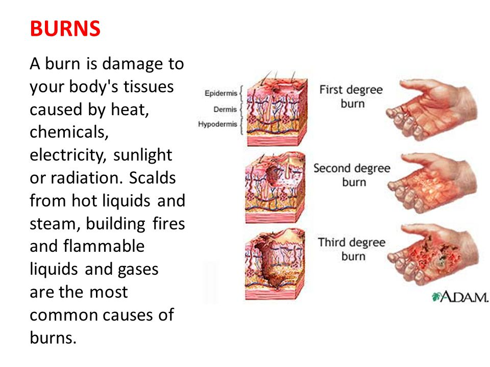 1 ST DEGREE BURNS First-degree burns, the mildest of the three, are limited to the top layer of skin: Signs and symptoms: These burns produce redness, pain, and minor swelling.