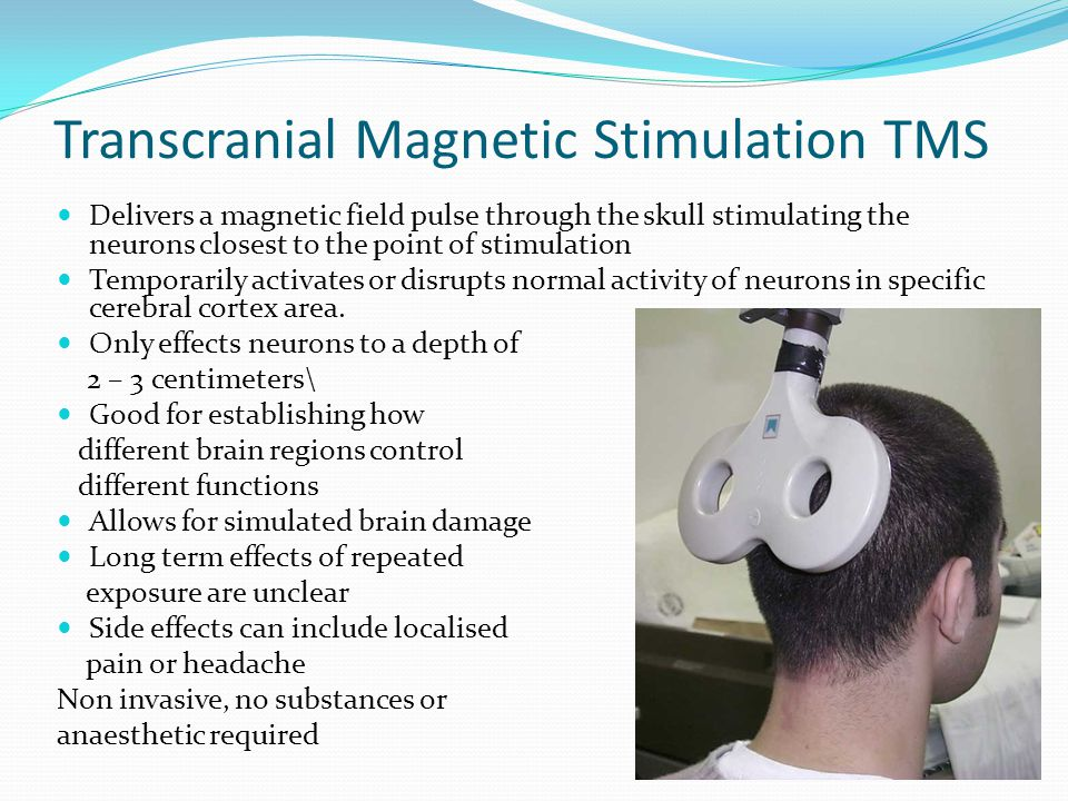 Transcranial Magnetic Stimulation TMS Delivers a magnetic field pulse through the skull stimulating the neurons closest to the point of stimulation Temporarily activates or disrupts normal activity of neurons in specific cerebral cortex area.