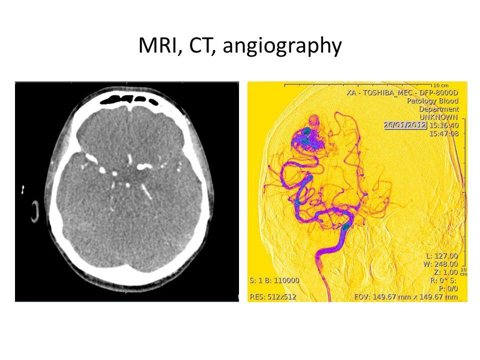 MRI, CT, angiography