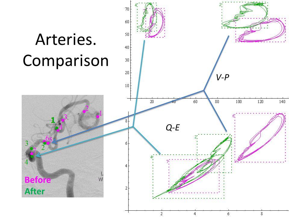 Arteries. Comparison V-P Q-E Before After
