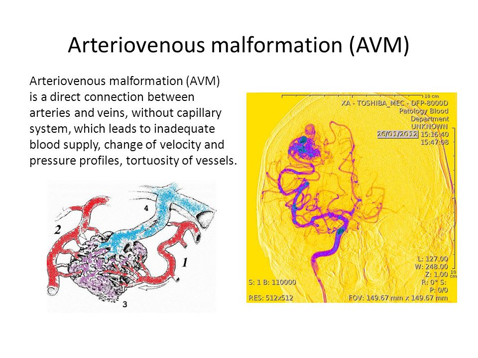 Arteriovenous malformation (AVM) is a direct connection between arteries and veins, without capillary system, which leads to inadequate blood supply, change of velocity and pressure profiles, tortuosity of vessels.