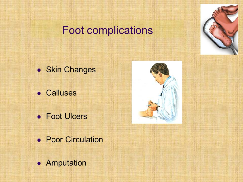 Foot complications Skin Changes Calluses Foot Ulcers Poor Circulation Amputation