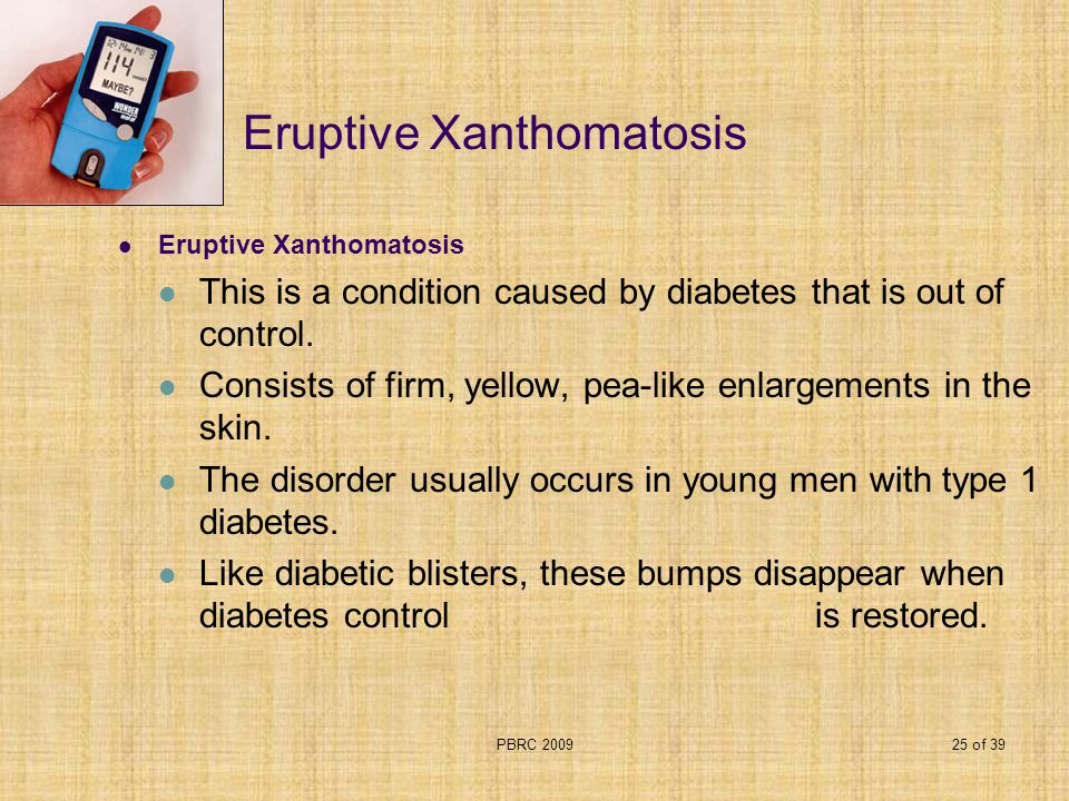 PBRC 200925 of 39 Eruptive Xanthomatosis This is a condition caused by diabetes that is out of control. Consists of firm, yellow, pea-like enlargement