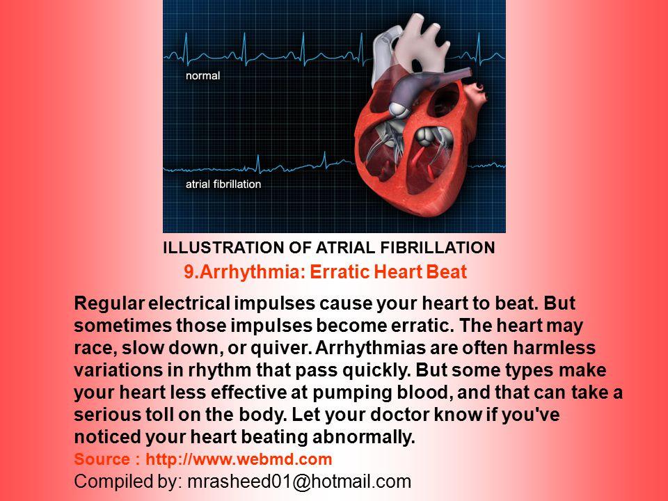Defibrillator 8.Sudden Cardiac Death Sudden cardiac death (SCD) accounts for half of all heart disease deaths in the U.S., but it's not the same as a
