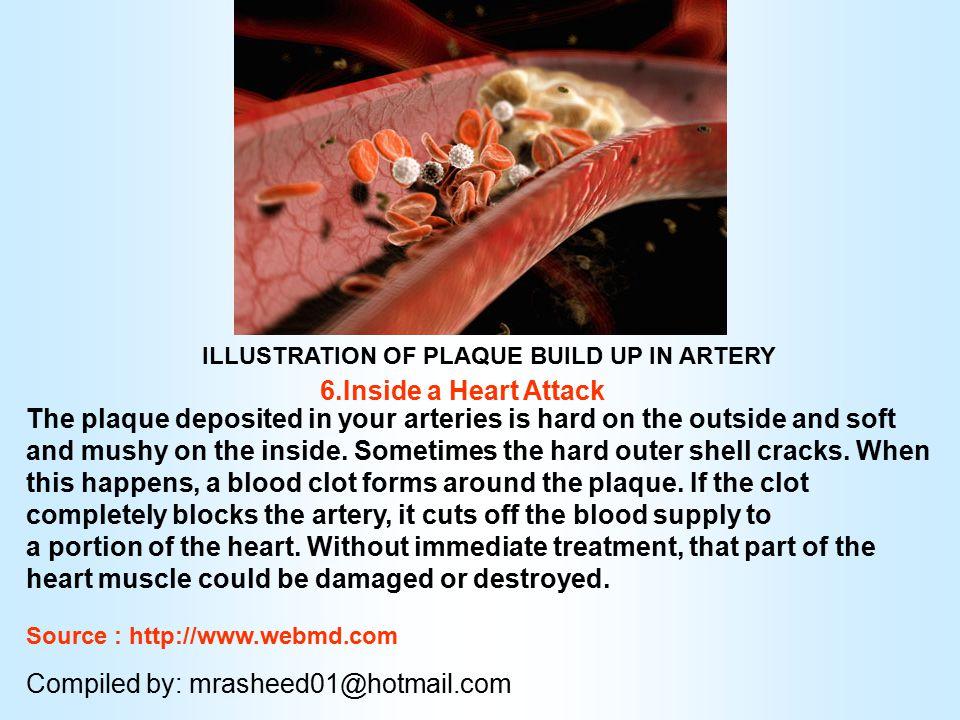 Myocardial infarction 5.Signs of Coronary Artery Disease A precursor to a heart attack, coronary artery disease or CAD occurs when sticky plaque build