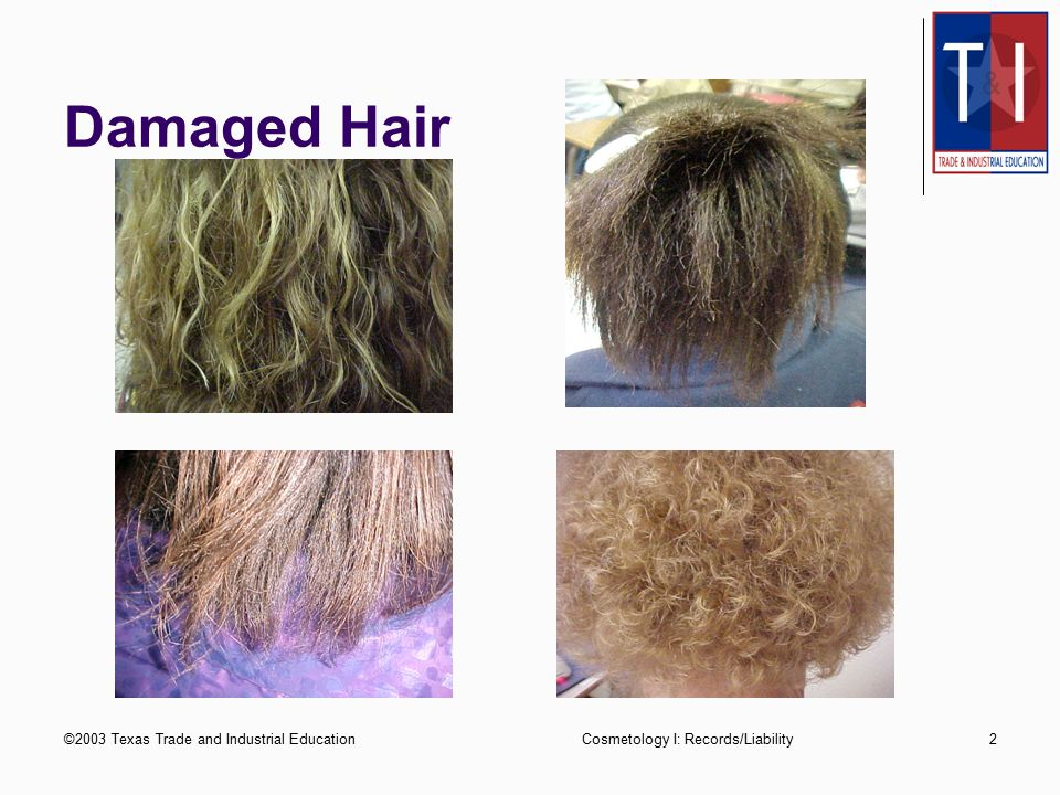 ©2003 Texas Trade and Industrial EducationCosmetology I: Records/Liability2 Damaged Hair