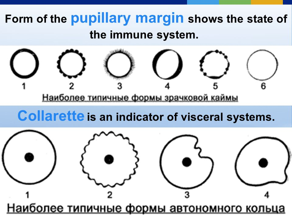Form of the pupillary margin shows the state of the immune system.