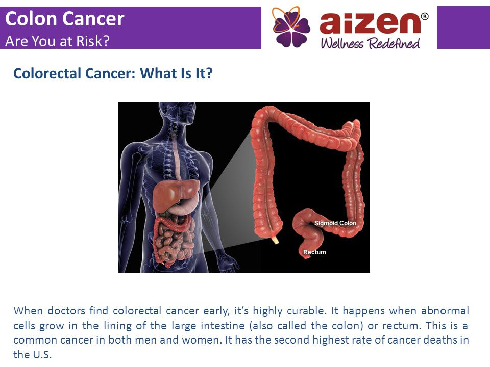 Colon Cancer Are You at Risk? Colorectal Cancer: What Is It? When doctors find colorectal cancer early, it's highly curable. It happens when abnormal