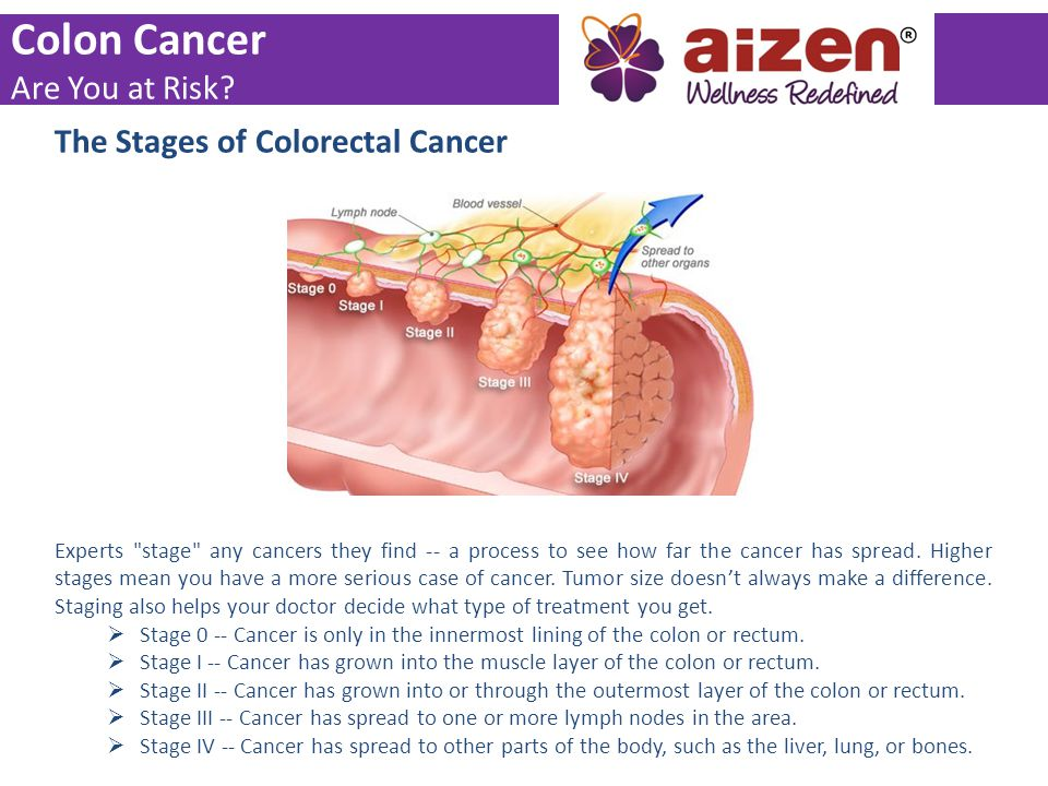 The Stages of Colorectal Cancer Experts