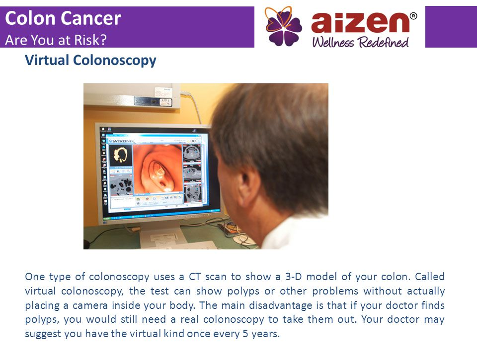 Virtual Colonoscopy One type of colonoscopy uses a CT scan to show a 3-D model of your colon. Called virtual colonoscopy, the test can show polyps or