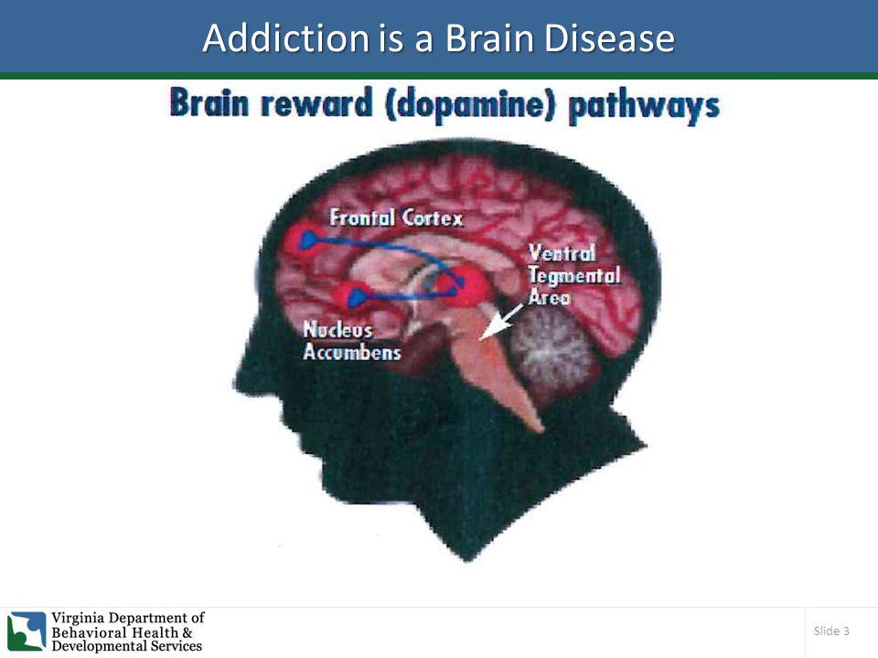 Slide 3 Addiction is a Brain Disease