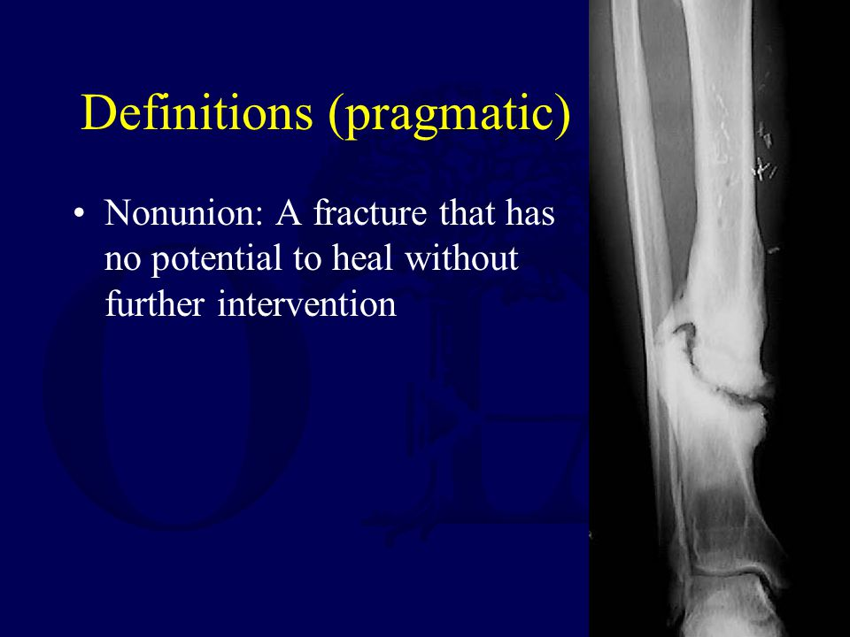 Definitions (pragmatic) Nonunion: A fracture that has no potential to heal without further intervention
