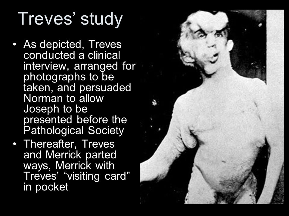 Treves' study As depicted, Treves conducted a clinical interview, arranged for photographs to be taken, and persuaded Norman to allow Joseph to be presented before the Pathological Society Thereafter, Treves and Merrick parted ways, Merrick with Treves' visiting card in pocket