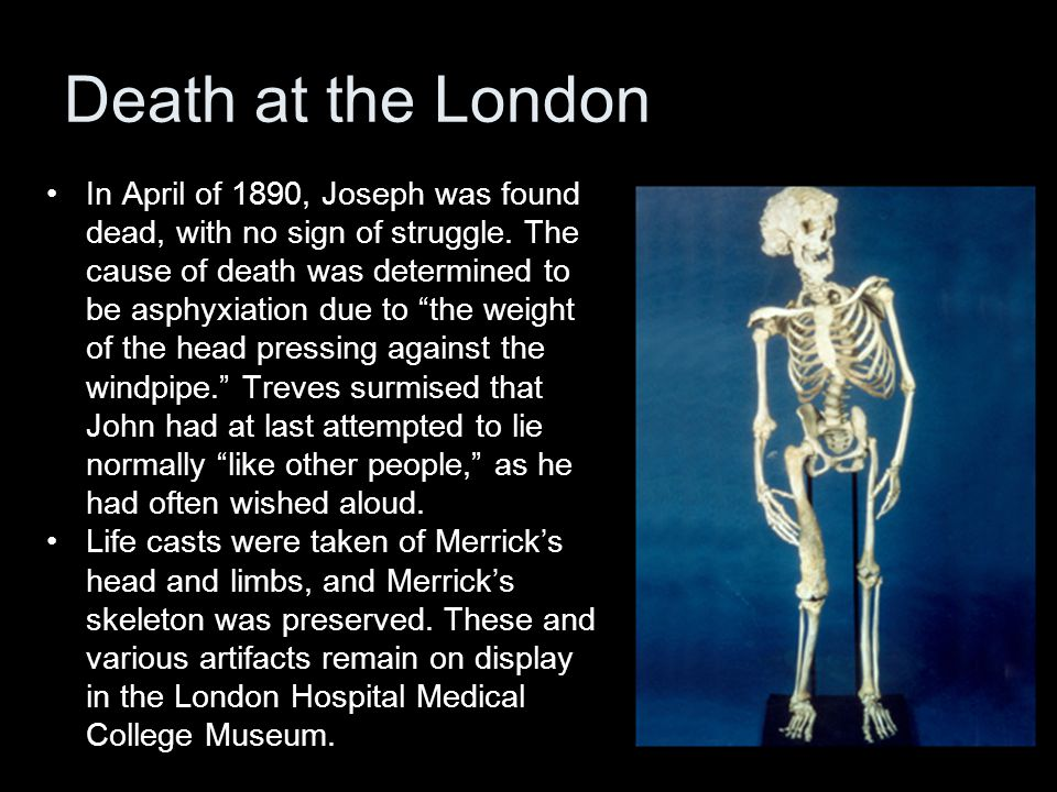 Death at the London In April of 1890, Joseph was found dead, with no sign of struggle.