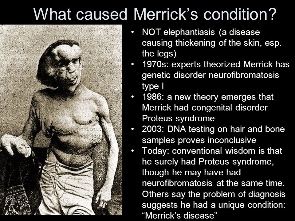 What caused Merrick's condition. NOT elephantiasis (a disease causing thickening of the skin, esp.