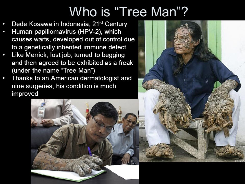 Who is Tree Man .